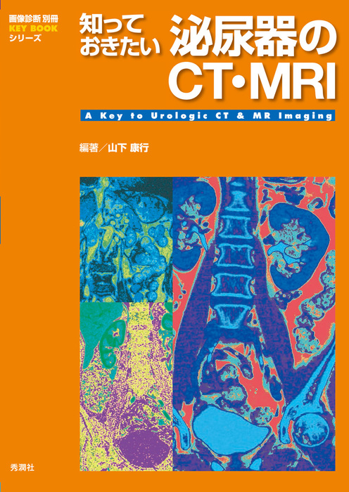 知っておきたい泌尿器のCT・MRI-電子書籍-拡大画像