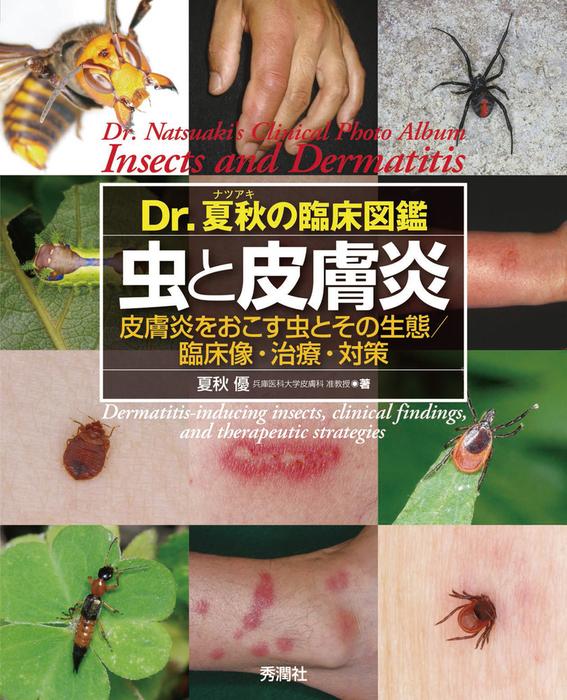 Dr.夏秋の臨床図鑑 虫と皮膚炎拡大写真