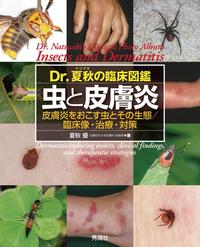 Dr.夏秋の臨床図鑑 虫と皮膚炎