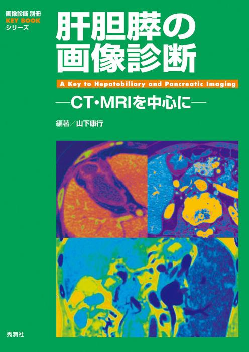 肝胆膵の画像診断拡大写真