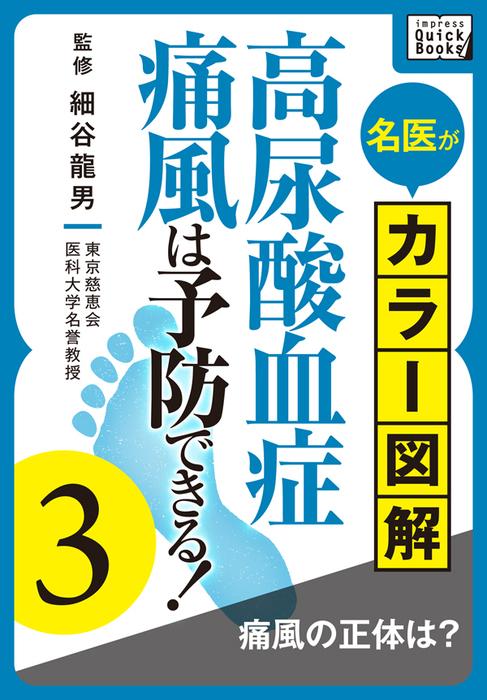 名医がカラー図解! 高尿酸血症・痛風は予防できる! (3) 痛風の正体は?拡大写真