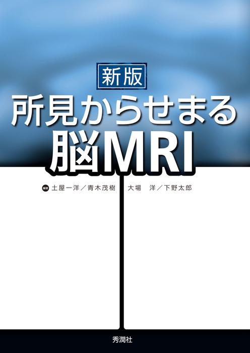 新版 所見からせまる脳MRI-電子書籍-拡大画像