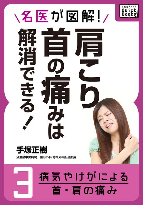 名医が図解! 肩こり・首の痛みは解消できる! (3) 病気やけがによる首・肩の痛み拡大写真