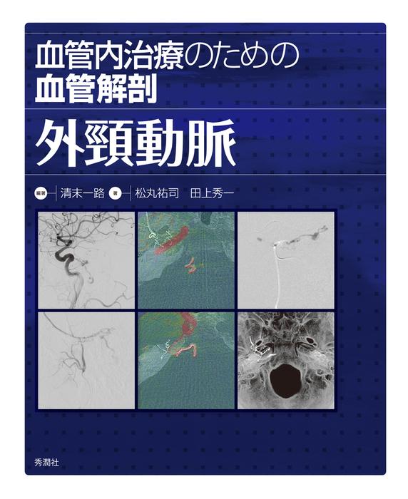 血管内治療のための血管解剖 外頸動脈拡大写真