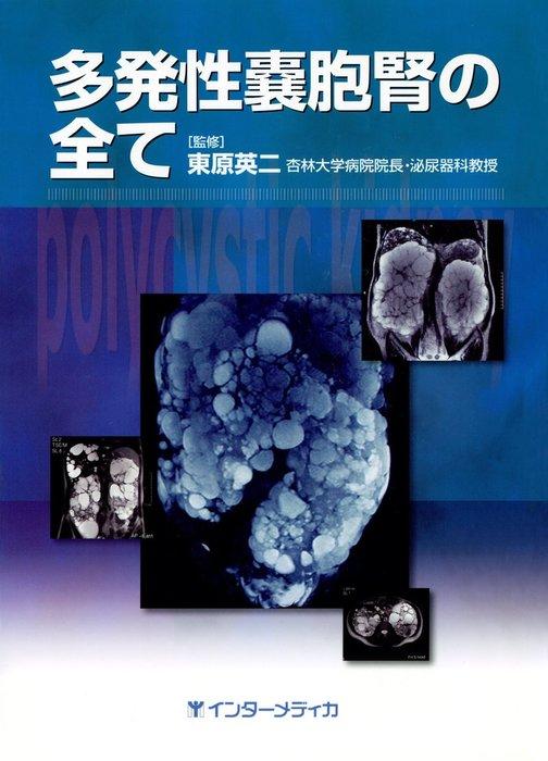 多発性嚢胞腎の全て拡大写真