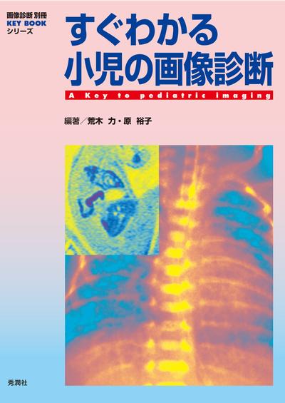 すぐわかる小児の画像診断-電子書籍