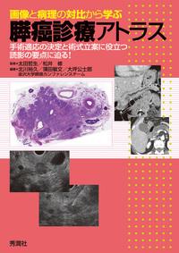 画像と病理の対比から学ぶ膵癌診療アトラス 手術適応の決定と術式立案に役立つ読影の要点に迫る-電子書籍