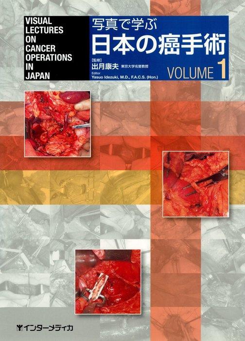 写真で学ぶ日本の癌手術〈VOLUME 1〉拡大写真
