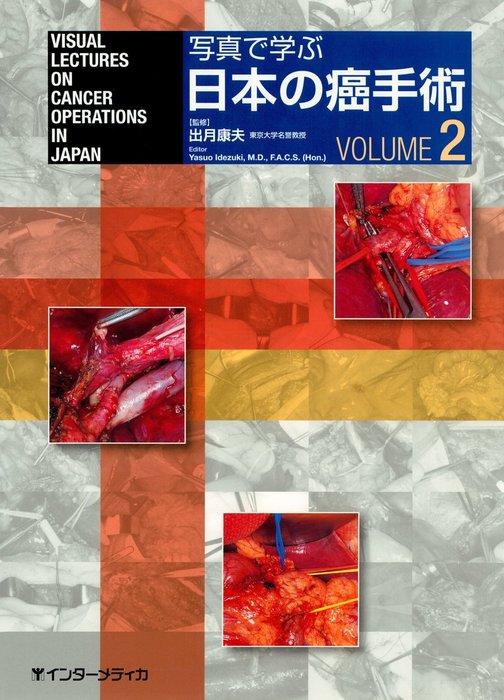 写真で学ぶ日本の癌手術〈VOLUME 2〉拡大写真