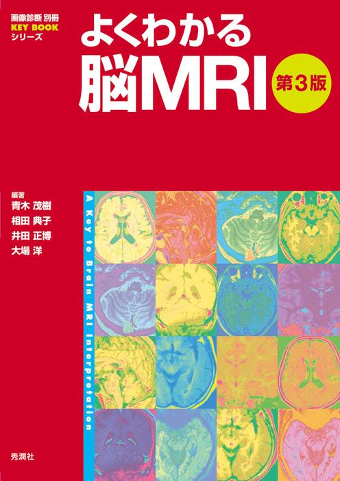 よくわかる脳MRI 第3版拡大写真