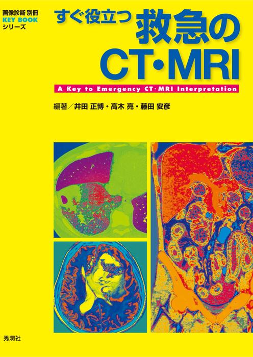 すぐ役立つ救急のCT・MRI拡大写真